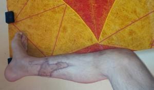 photo au 30.10.2014 pied non gonflé, pas couleur, bonne circulation sanguine (avec toujours appui interdit), pas de douleur, ni prise d'anti-douleur) - port d'une chaussette de contention  + port d'une attelle rigide et légère( en cours: évolution greffe osseuse J +49 au 10.11.2014)