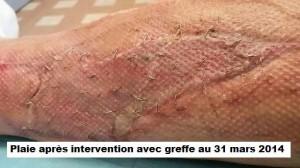 dossier greffe4a