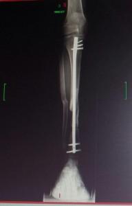 11 JUILLET 2014 fracture tibia_péroné J + 6 mois, avec clou centromédullaire et vis + pseudarthrose septique en attente avant internention chirurgicale pour une ostéite chronique sur fracture ouverte du 20.01.2014