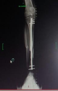 20 MAI 2014 fracture tibia_péroné J + 4 mois, avec clou centromédullaire et vis