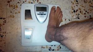APPUI à J+10 mois et GITP à J+2 mois - sans clou centromédullaire/pied non gonflé
